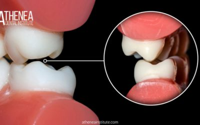 Ortopedia dentofacial en el tratamiento de las maloclusiones